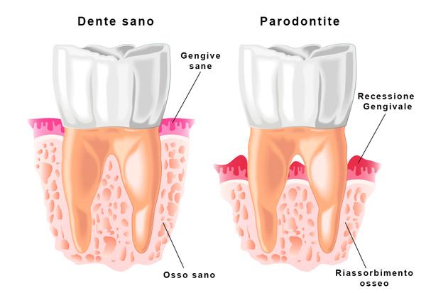 Il protocollo Parodontale